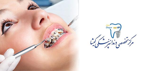 ارتودنسی ثابت توسط متخصص ارتودنسی خوب در غرب تهران