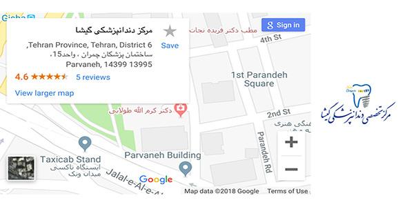 بهترین مرکز ایمپلنت در تهران