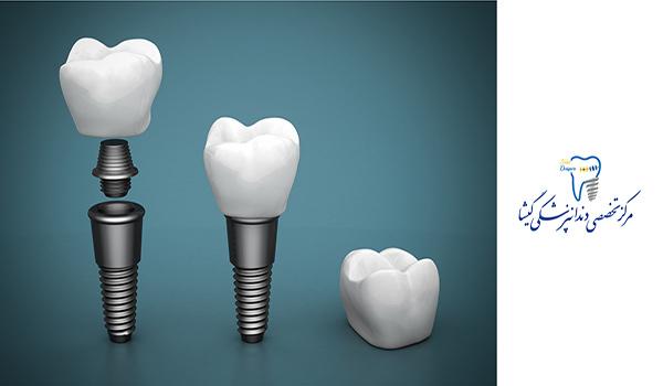 بهترین برندهای ایمپلنت دندان
