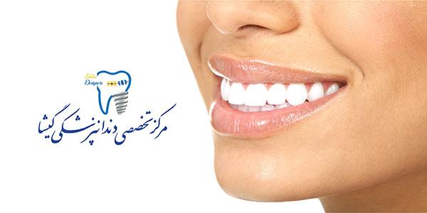 روکش دندان تمام سرامیک توسط متخصص پروتز دندان