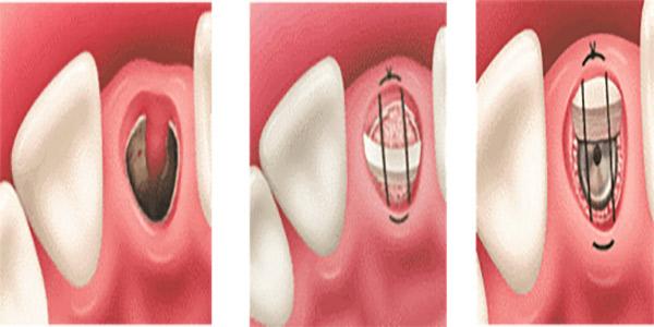 شرایط لازم برای کاشت ایمپلنت فوری