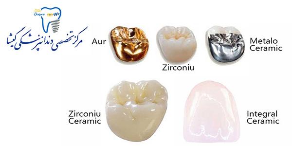 انواع کامپوزیت های در دسترس برای کارهای زیبایی دندان