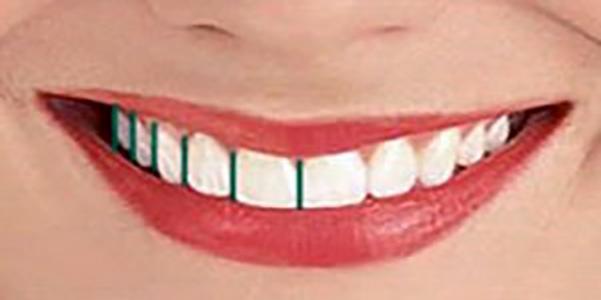 درمانهای زیبایی لبخند