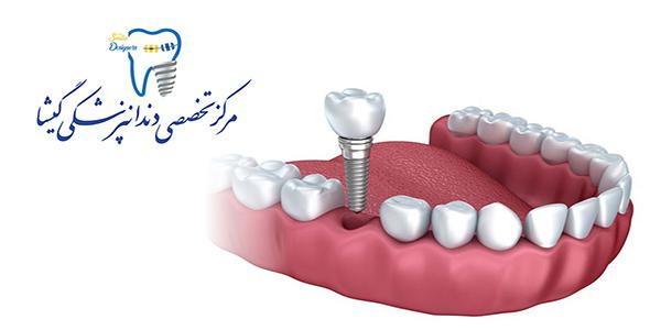 روش های جایگزین کردن دندان های از دست رفته