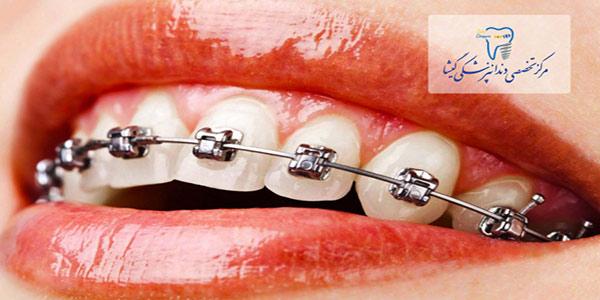 ارتودنسی دندانها حتی در سنين بالا توسط متخصص ارتودنسی