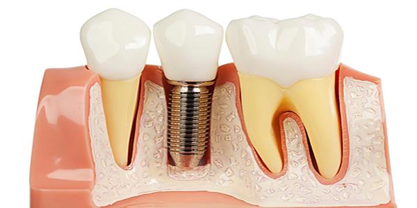کاشت ایمپلنت دندان در افراد سیگاری