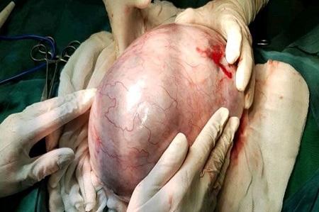 برداشت غده ۶ کیلویی از شکم بیمار در آستارا