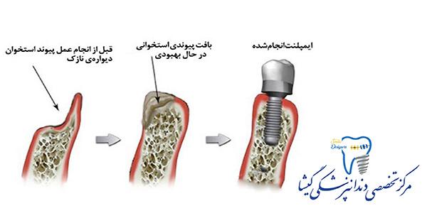 پیوند استخوان برای ایمپلنت توسط متخصص ایمپلنت در تهران