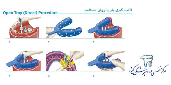 روشهای قالب گیری ایمپلنت توسط متخصص پروتزهای دندانی و ایمپلنت در تهران