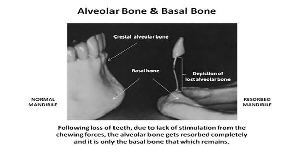 مزیتهای بارگذاری فوری ایمپلنت دندان و ایمپلنتهای قاعده ای