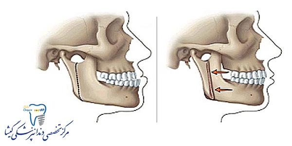 مراقبت های بعد از جراحی فک در بیماران ارتودنسی شده