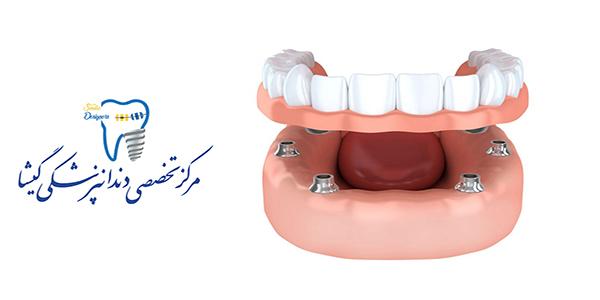 اوردنچر متکی بر ایمپلنت های دندانی توسط متخصص ایمپلنت در تهران