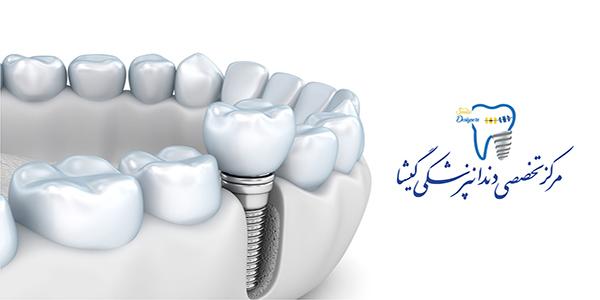 بارگذاری فوری ایمپلنت دندان توسط متخصص ایمپلنت تهران