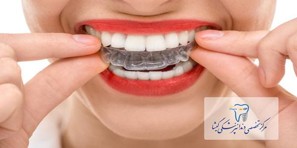 مزايای درمان ارتودنسی متحرک توسط متخصص ارتودنسی تهران