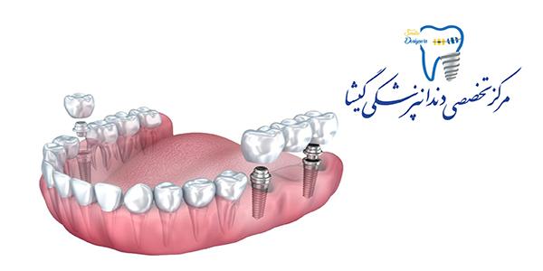 پروتز پارسیل ( تیکه ای) توسط متخصص پروتزهای دندانی وایمپلنت در تهران