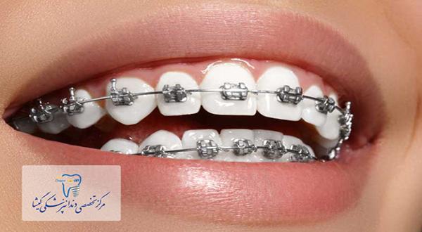 ارتباط متخصص ارتودنسی با متخصص لثه و دندانپزشكی ترميمی