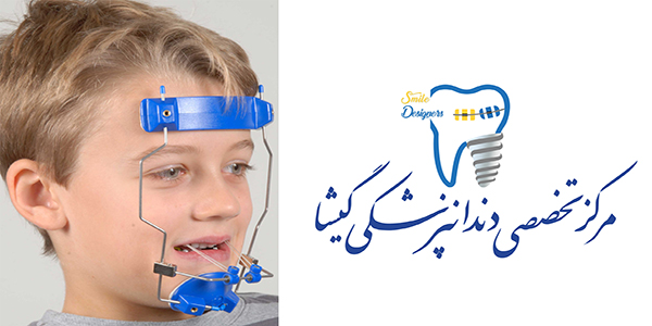 ارتودنسی خارج دهانی توسط متخصص ارتودنسی