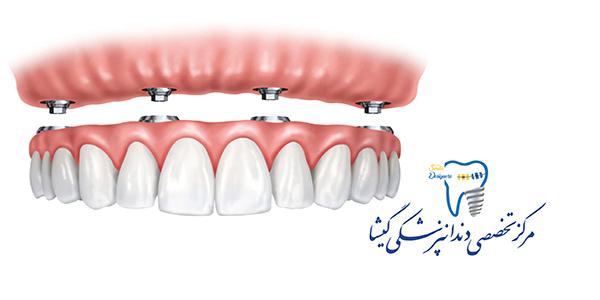 طرح درمان های موجود برای بی دندانی کامل