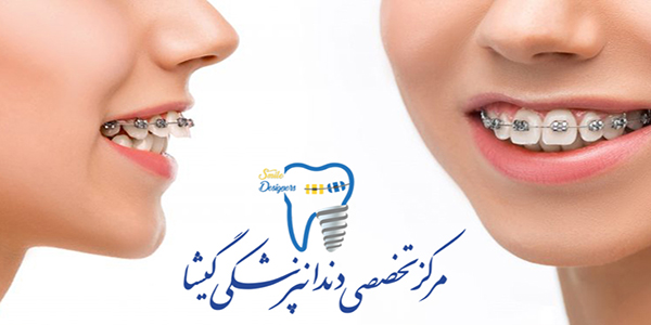 حركت دندان در ارتودنسی