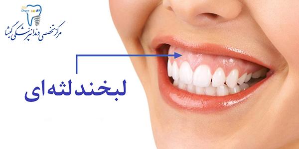 لبخند لثه ای و درمان آن توسط متخصص زیبایی دندان در تهران