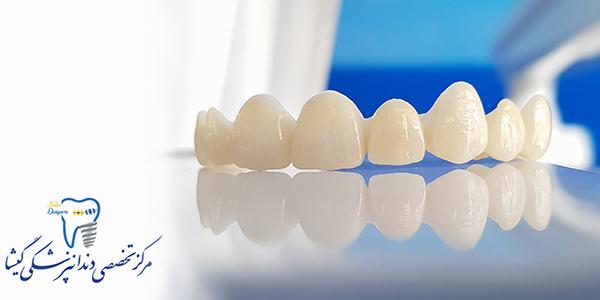 انواع روکش های تمام سرامیک توسط متخصص پروتزهای دندانی و ایمپلنت در تهران