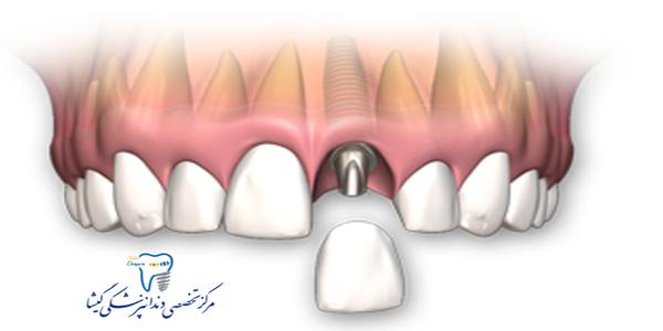 ایمپلنت دندان و روکش یک روزه توسط بهترین متخصص ایمپلنت دندان درغرب تهران