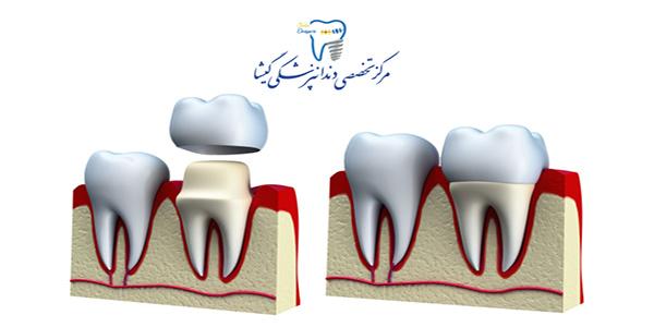 روکش دندان چیست ؟