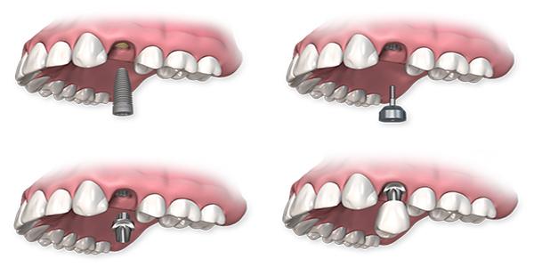 مراحل درمان ایمپلنت دندان توسط متخصص ایمپلنت در تهران