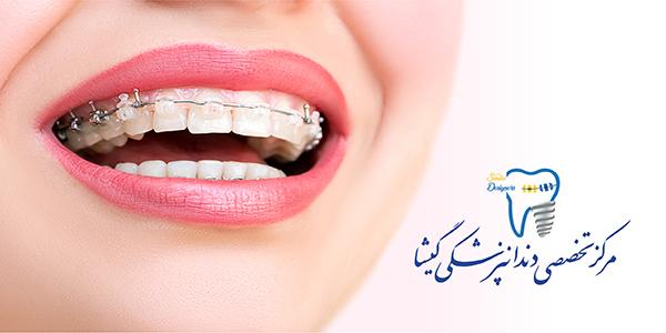 هدف درمان ارتودنسی از نگاه متخصص ارتودنسی در تهران