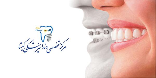 كاربرد ليزر توسط متخصص ارتودنسی در تهران