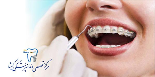 خصوصيات بهترین بيمار ارتودنسی از نظر متخصص ارتودنسی در تهران