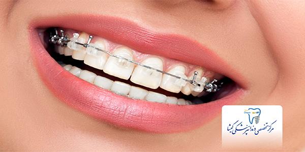 اولويت بندی درمان دندانپزشكي در بيماران ارتودنسي توسط متخصص ارتودنسی