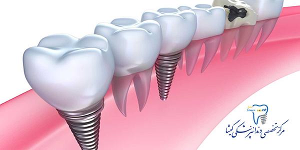 بهترین شرایط برای کاشت دندان ( ایمپلنت) توسط بهترین متخصص ایمپلنت در غرب تهران