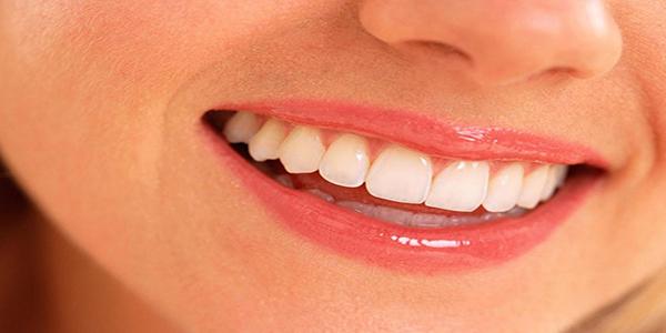 ایمپلنت دندان بهتر است یا بریج دندان؟